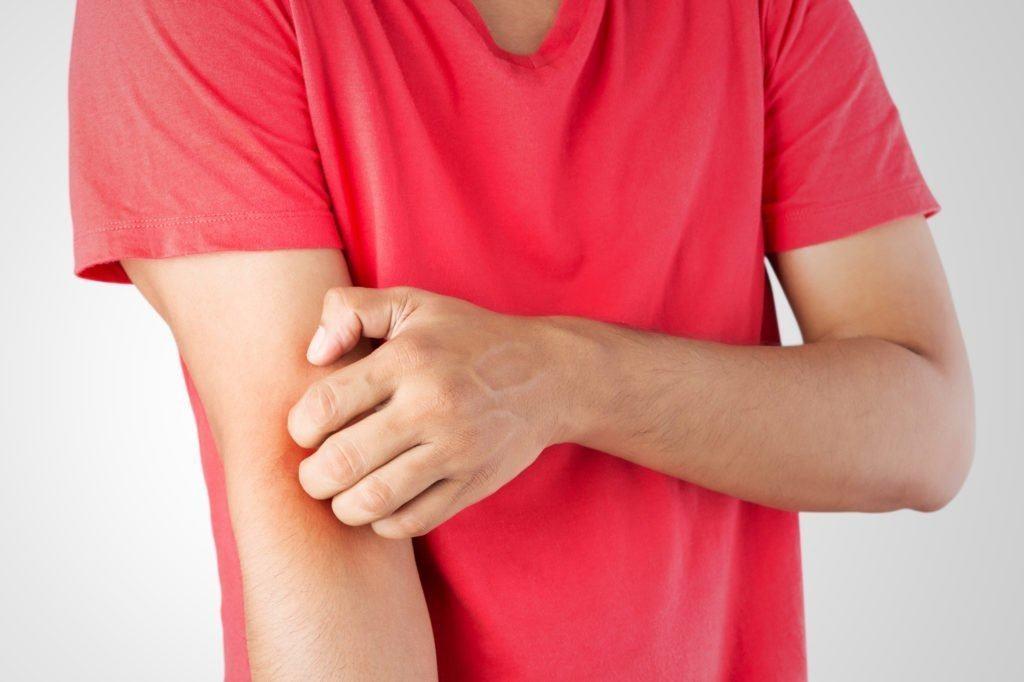 Bị côn trùng cắn bôi thuốc gì để giảm sưng tấy và giảm cảm giác ngứa?