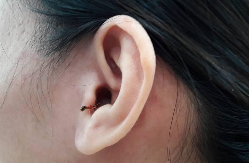 Cách xử lý kiến, côn trùng chui vào tai