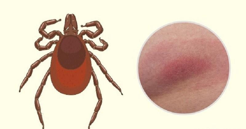 Vết bọ ve đốt thường nổi lên các đốm đỏ thường không đau
