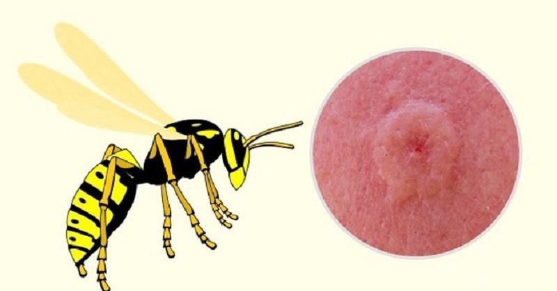 Vết đốt ong vò vẽ gây xuất huyết trên da