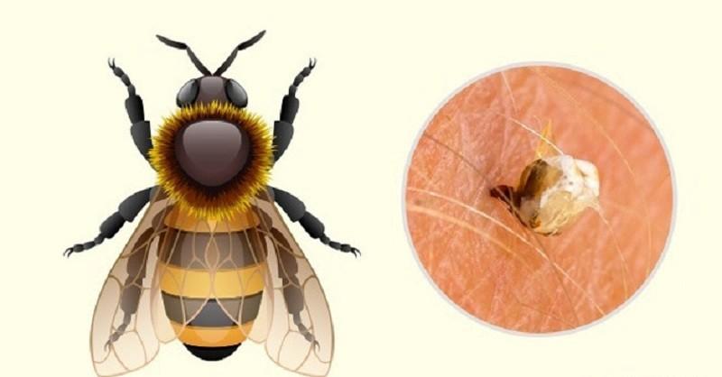 Vết mong mật đốt có điểm trắng nhỏ của ngòi ong ở giữa